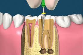 endodonzia2